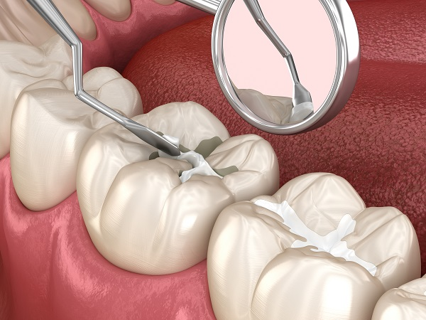 How Long Will A Dental Sealant Treatment Last?